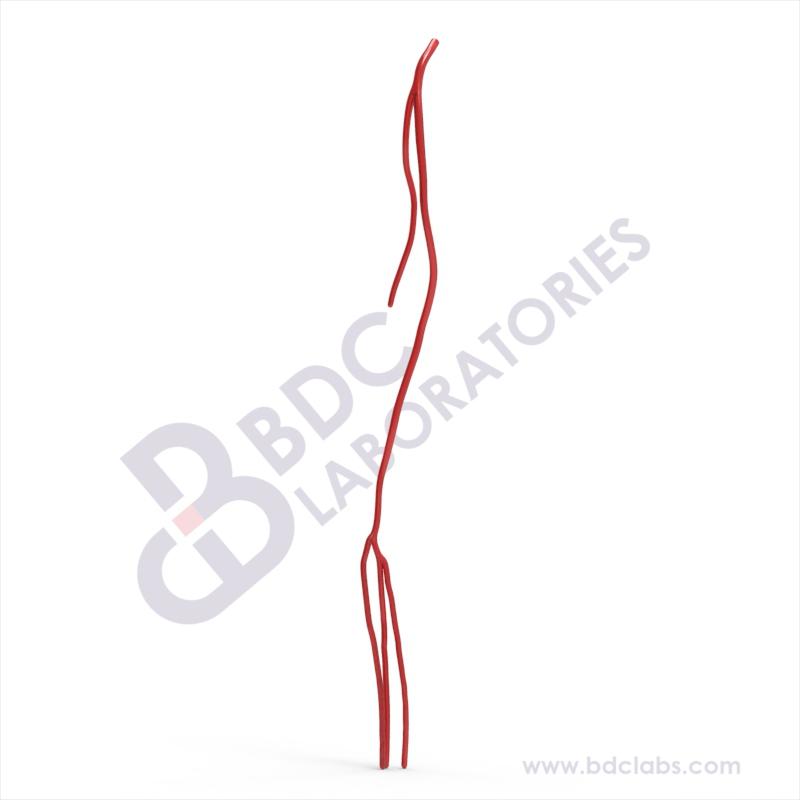 Whole Leg Arterial (SAWL-1) Image